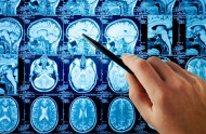 Krvácení do mozku zřejmě vede k nedostatku růstového hormonu