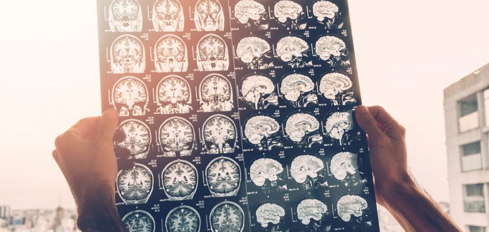 Víte, jak se léčí roztroušená skleróza?