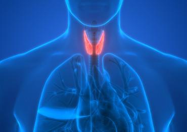 Subakutní tyreoiditida po virové infekci u mladé pacientky