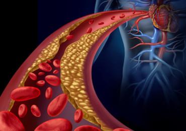 Subklinická hypotyreóza zřejmě zvyšuje riziko diabetu i kardiovaskulárních onemocnění