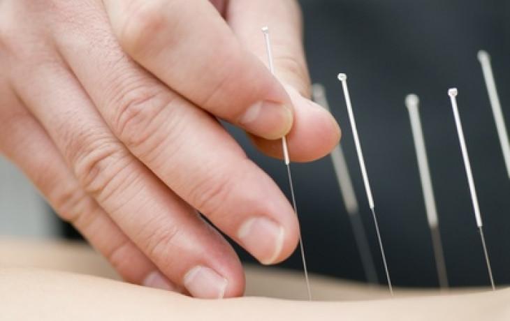 Akupunkturou k oplodnění?